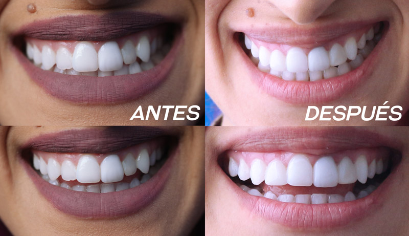 carillas dentales antes y despues odontologists