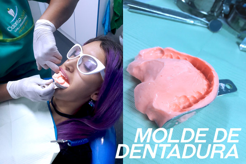 molde-de-dentadura-odontologists