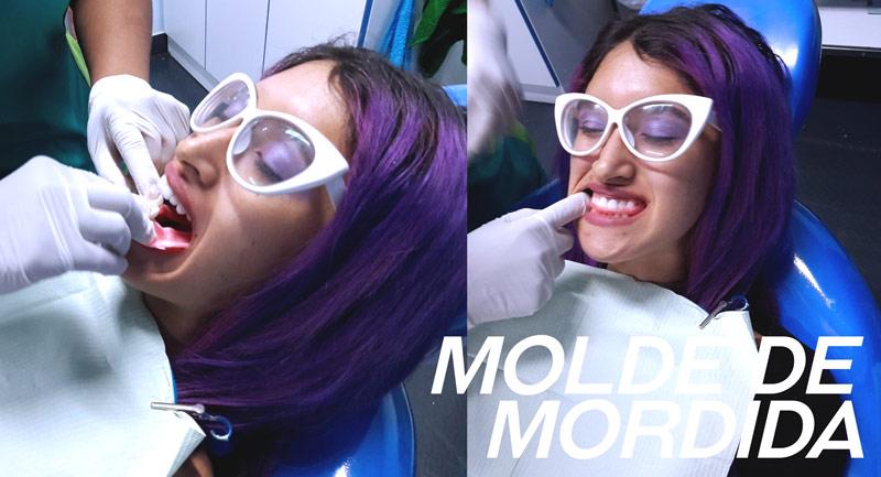 molde-de-mordida-odontologists